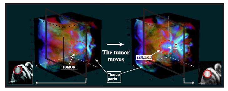 tumor synthetic images